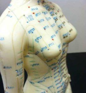 نقاط طب سوزنی روی بدن