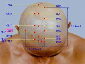 نقاط طب سوزنی سر برای رفع سردرد