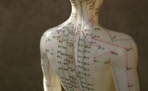 نقاط مختلف طب سوزنی در بدن
