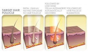 فرآیند حذف مو های زائد با لیزر
