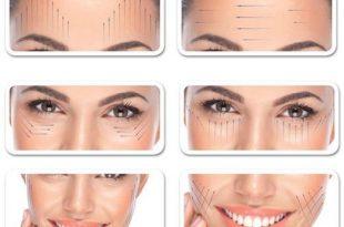استفاده از نخ لیفت از بهترین روش های جوانسازی پوست است