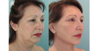 لیفتینگ صورت و جوانسازی و کشیدن پوست صورت و گرد با کاشت نخ