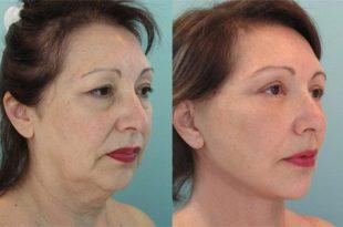در روش لیفت کردن و رفع چروکهای پوست صورت و گردن با نخ، از نخهای استریل و یکبار مصرف و قابل جذب استفاده میشود. این روش نتایجی بسیار مؤثر دارد.