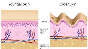 اثر وجود کلاژن بر روی چین و چروک پوست