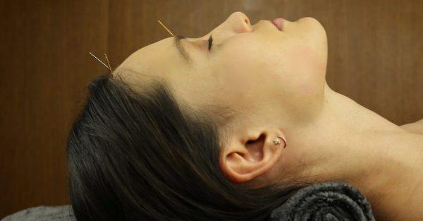 اثرات ماندگار طب سوزنی زيبایی برای درمان افتادگی پوست صورت