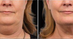 روش طب سوزنی زیبایی پوست برای جوانسازی و چاقی صورت