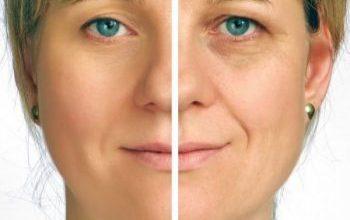 Photo of طب سوزنی لیفتینگ و جوانسازی و ضد پیری پوست جایگزین روش جراحی و تزریق ژل