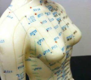 نقاط طب سوزنی روی بدن و سینه ها