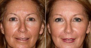 طب سوزنی لیفت صورت یا طب سوزنی آرایشی به جای عمل های زیبایی