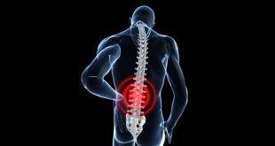 درمان سیاتیک و کاهش به کمک طب سوزنی چینی به صورت ایمن و طبیعی