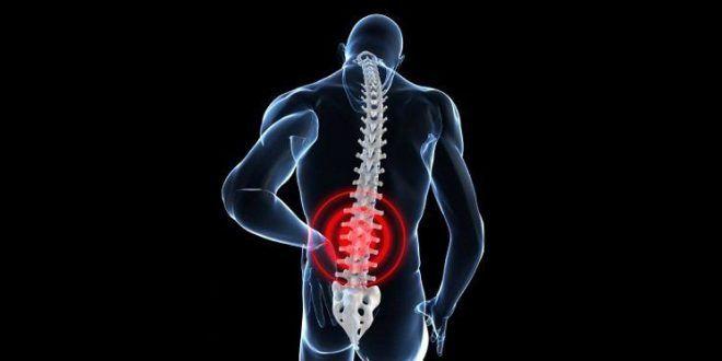 درد تحتانی کمر یا سیاتیک