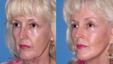 چاق شدن صورت با طب سوزنی و جوانسازی صورت با طب سوزنی زیبایی پوست