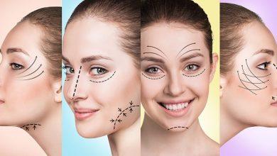 Photo of لیفت صورت با نخ کاگ یا خاردار pdo برای رفع افتادگی و شلی صورت با اثر فوری