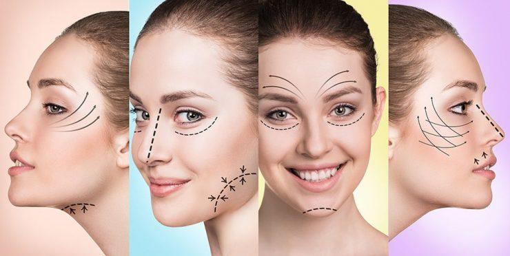 لیفت با نخ کاگ یا خاردار pdo برای رفع افتادگی و شلی صورت با اثر فوری