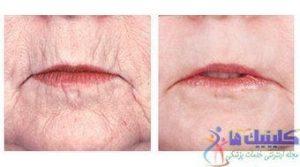 درمان چین و چروک پوست صورت و دور چانه با طب سوزنی ماندگار چین