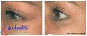 رفع چروکهای زیر دور چشم با طب سوزنی زیبایی چشم