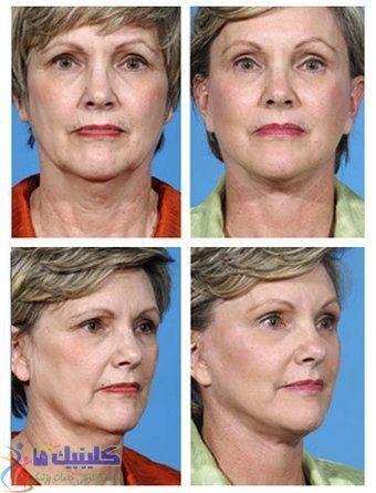 کاهش چین و چروک خط خنده و دور لب و صورت با 15 جلسه طب سوزنی آرایشی صورت