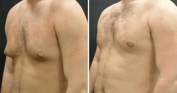 کوچک کردن سینه مردان با لیپوساکشن مرسوم و لیزر لیپولیز