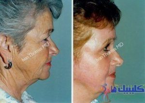 درمان افتادگی و چروک پوست صورت با طب سوزنی و آرایشی ماندگار چین