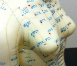 آیا بزرگ کردن سینه با طب سوزنی به مقدار جراحی پروتز موثر است؟