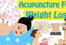طب سوزنی برای لاغری شکم و پهلو و کاهش وزن