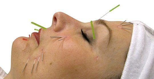 طب سوزنی برای چروک صورت و جوانسازی عمیق پوست با سوزن طلا