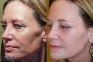 درمان طب سوزنی زیبایی برای رفع چین و چروک های ریز و درشت صورت و جوانسازی چند ساله پوست و افزایش کلاژن سازی