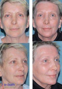 درمان چین و چروک صورت و دور لی و پیشانی با طب سوزنی زیبایی پوست