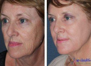درمان ماندگار سنتی چین برای کاهش شدید چین و چروک و خطوط پوست صورت و جوانسازی چند ساله صورت