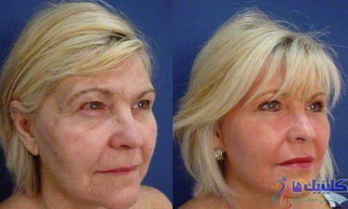 لیفتینگ و جوانسازی عمیق پوست صورت برای یک خانم مسن با طب چینی و سوزنی