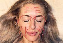 تصویر طب سوزنی صورت چطور انجام میشود، عملکرد و زمان لازم برای زیبایی پوست