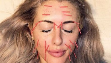 Photo of طب سوزنی صورت چطور انجام می شود، عملکرد و زمان لازم برای زیبایی پوست