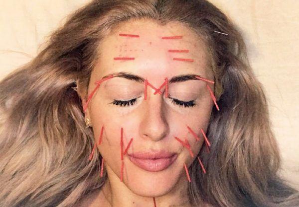 طب سوزنی صورت برای جوانی پوست و لیفتینگ صورت