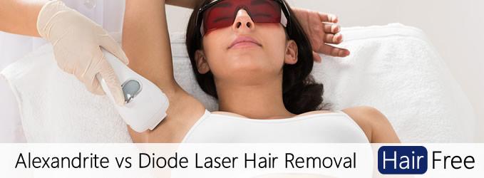 لیزر دیودی برای حذف موهای زائد در مقایسه با لیزر الکساندریت