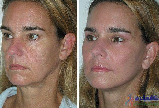 جوانسازی صورت بوسیله طب سوزنی آرایشی و زیبایی پوست صورت