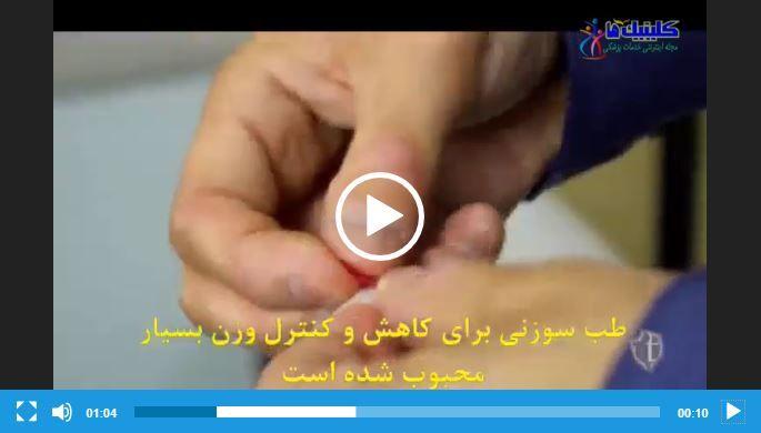 فیلم لاغری با طب سوزنی