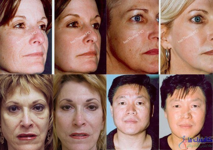 درمان افتادگی پوست صورت و گردن و غبغب با طب سنتی ماندگار چین