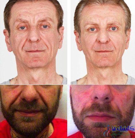 کاهش افتادگی و لیفت صورت و خط خنده با طب سوزنی زیبایی صورت