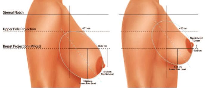 جراحی ماموپلاستی کوچک کردن سینه زنان