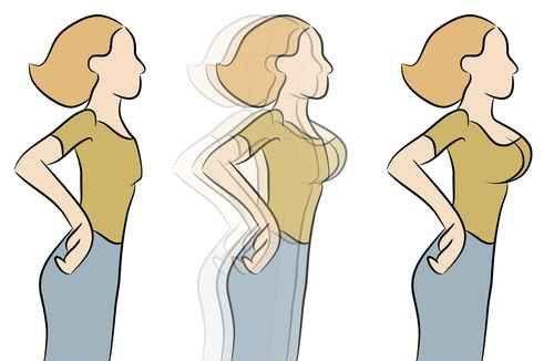 بزرگ کردن سینه خانمها با طب سوزنی و پروتز سینه و تزریق چربی