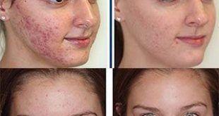 درمان جوش صورت به کمک بهترین روش درمان طبیعی یعنی طب سوزنی