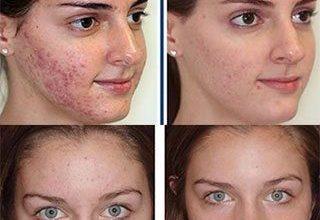 Photo of درمان جوش صورت به کمک بهترین روش درمان طبیعی یعنی طب سوزنی