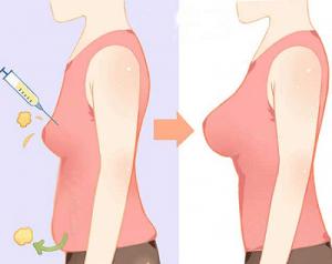 بزرگ کردن سینه با تزریق چربی