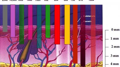 Photo of انواع دستگاه لیزر موهای زائد و مقایسه معایب و مزایای هر یک از آنها
