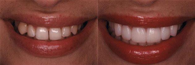 از بین بردن فاصله میان دندان ها