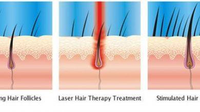 Photo of تناقض زیاد شدن مو بعد از لیزر موی زائد، چرا بعد لیزر موها بیشتر می شود؟