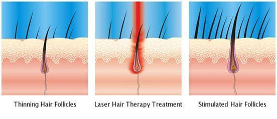 افزایش رشد مو لیزر موهای زائد