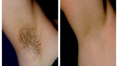 Photo of حذف دائم موهای زائد به چه معنی است و آیا چنین چیزی واقعا قابل انجام می باشد؟