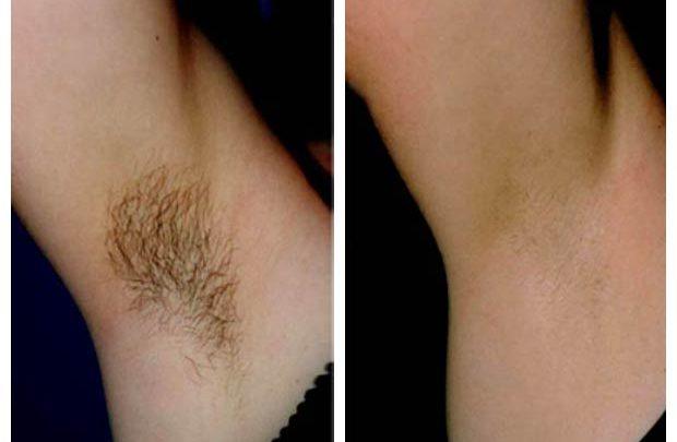 تصویر حذف دائم موهای زائد به چه معنی است و آیا چنین چیزی واقعا قابل انجام می باشد؟