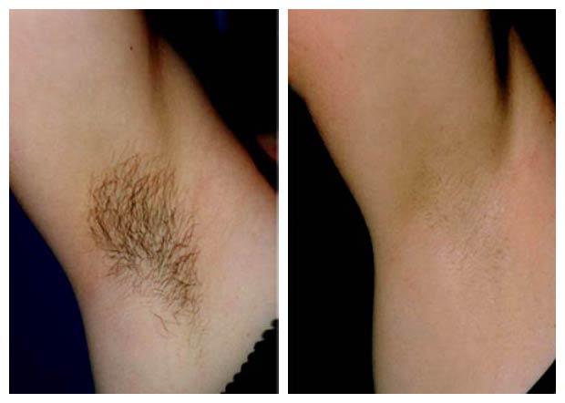 الکترولیز موهای زائد زیر بغل